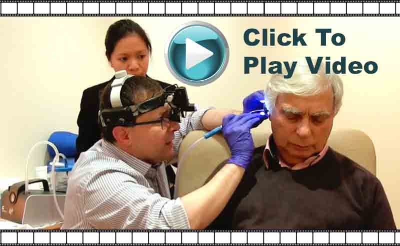 video of microsuction ear wax removal appointment